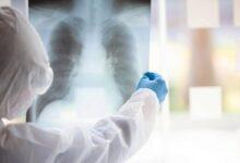 Photo of Коронавирустың белгілері бар пневмонияға 56 адам шалдығып, 2-уі көз жұмды