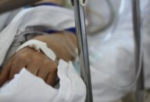 Photo of Скончался один из пострадавших от степных пожаров в Карагандинской области